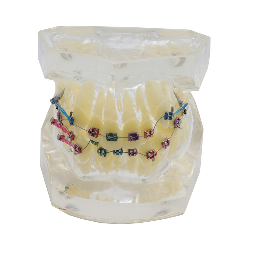 Modelo Dental estándar de Ortodoncia con abrazaderas y tubos bucales maloclusion Corret dientes modelo Elastolink dientes de cadena