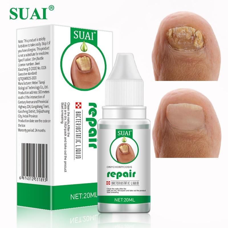 SUAI 20ML Nail Fungal Treatment Feet Care Essence Nail Foot Toe Nail Fungus Removal Gel Anti Infecti