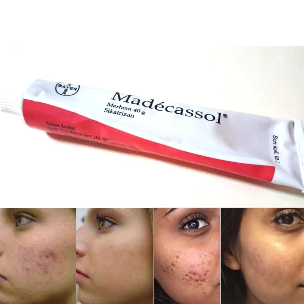 Madecassol 40 g Cream Magical Effect Sikatrizan Balm Centella asiatica cell regenerator acne pimple injury sore skin resurfacing
