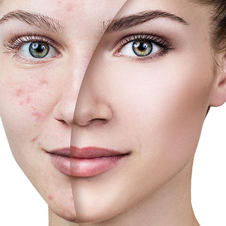 Aging skin care cream stains kozmatik original natural turkey anti-aging acne young